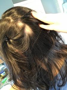 alopeica